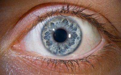 Tudod mi a leggyakoribb szemészeti kórkép?
